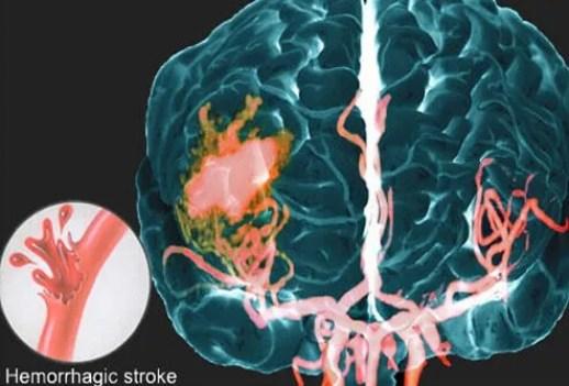 MRA of hemorrhagic stroke.