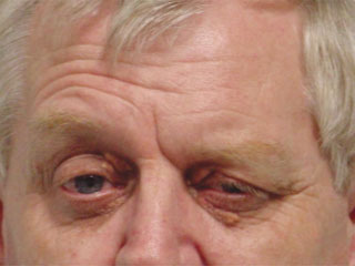 What is the prognosis of Hemifacial Spasm?   Other Diseases