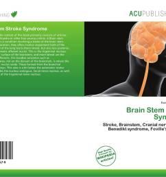 bookcover of brain stem stroke syndrome 9786200249579 [ 2000 x 1469 Pixel ]