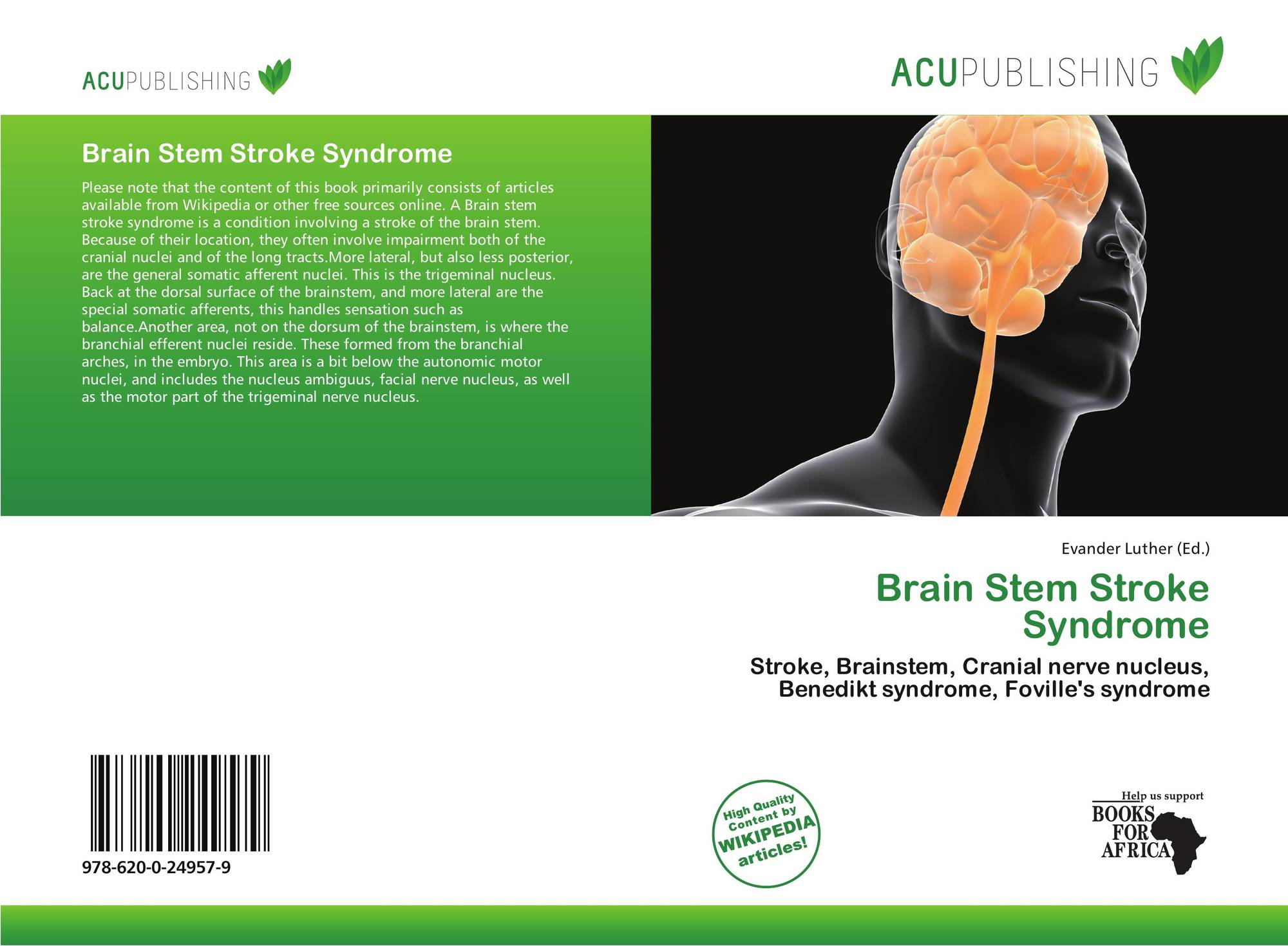 hight resolution of bookcover of brain stem stroke syndrome 9786200249579