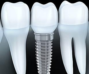 Dental Implants Used to Be Expensive - Not Anymore