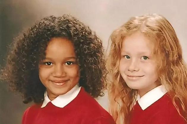 Ces jumelles sont différentes à la naissance, 18 ans plus tard, elles sont méconnaissables