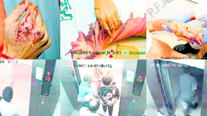 Sangre y restos de conflagración en las manos de Nisman. El ascensor de servicio, con las cámaras que sí funcionaban.