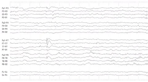 EEG of Patient With Epilepsy (Loopable) ~ Hi Res #61240346