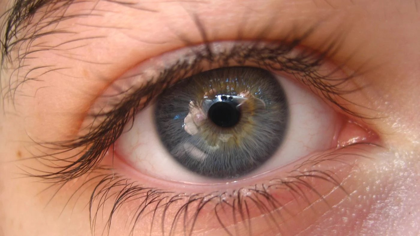 How Rare Are Gray Eyes?
