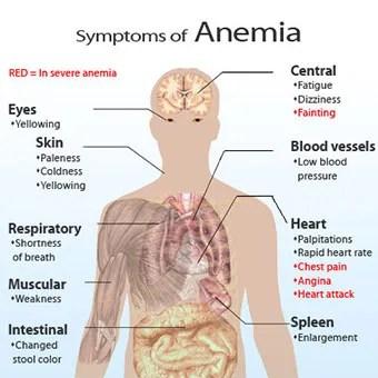 anemia iron deficiency symptoms