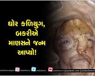 બકરીએ વૃદ્ધ જેવા દેખાતા માણસને જન્મ આપ્યો! સોનગઢમાં બચ્ચું જોઈ કુતૂહલ, 10 મિનિટ જીવ્યું અને મોતને ભેટ્યું