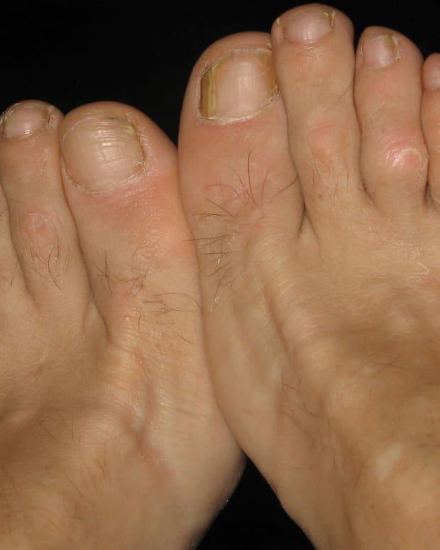 Split Pinky Toenail : split, pinky, toenail, Split, Little, Toenails, Accessory, RemedyGrove, Holistic, Wellness