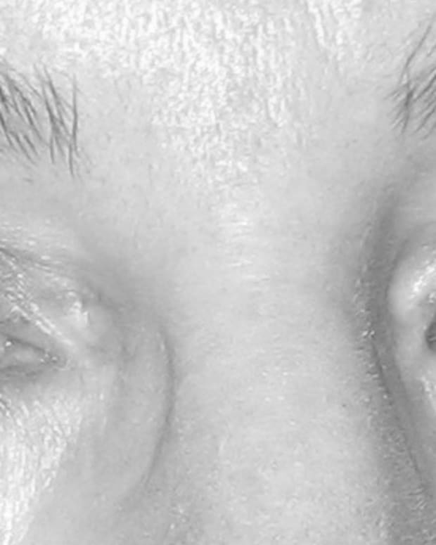 my review of the imak compression eye