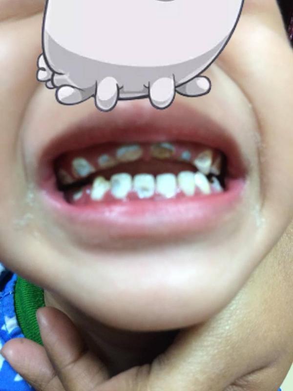 GAMBAR Gigi KanakKanak 3 Tahun Rosak Teruk Akibat Gula