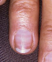 nail health fingernail problems