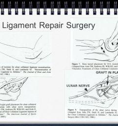 16 ulnar ligament repair surgery [ 1066 x 800 Pixel ]