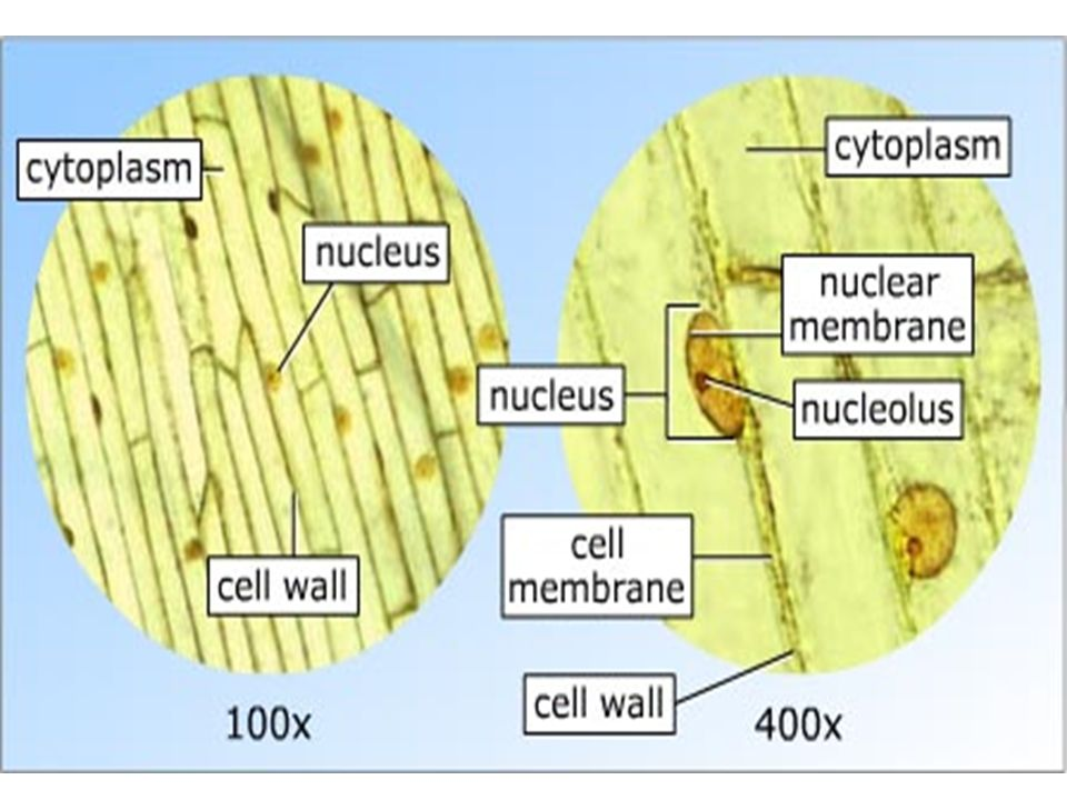 onion cell diagram dual battery isolator wiring labelled online of an under a microscope auto electrical muscle
