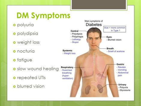 Image result for diabetes mellitus symptoms