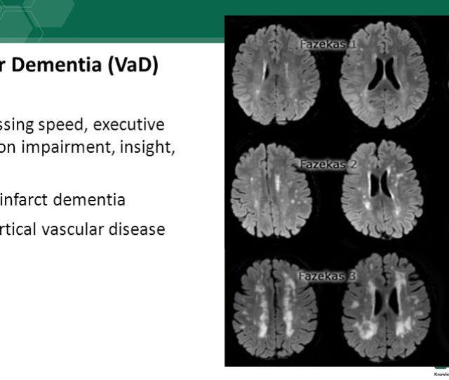 Vascular Dementia Vad Processing Speed Executive Function Impairment Insight Mood Multi Infarct Dementia Subcortical Vascular Disease