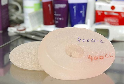 Recipients of breast implants will have their details recorded on a new national register.