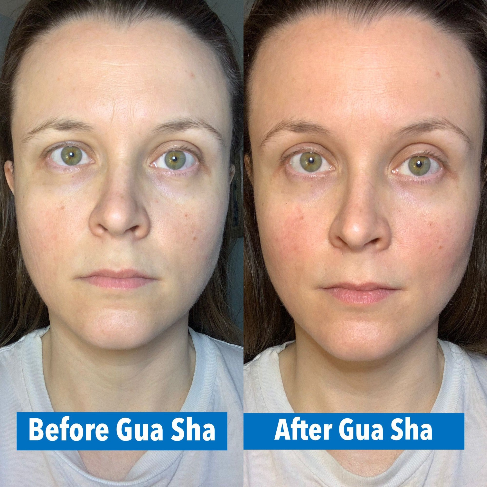 hight resolution of complexion boost from gua sha