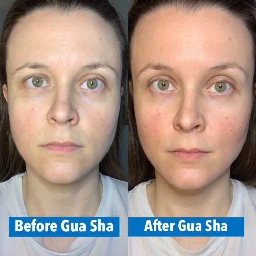 small resolution of complexion boost from gua sha