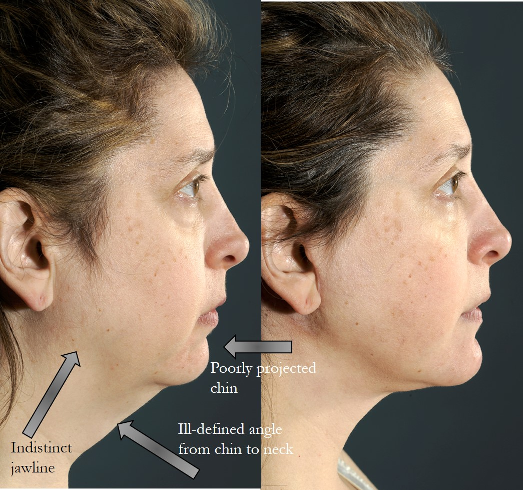 Chin Implant NYC — Lara Devgan MD MPH FACS
