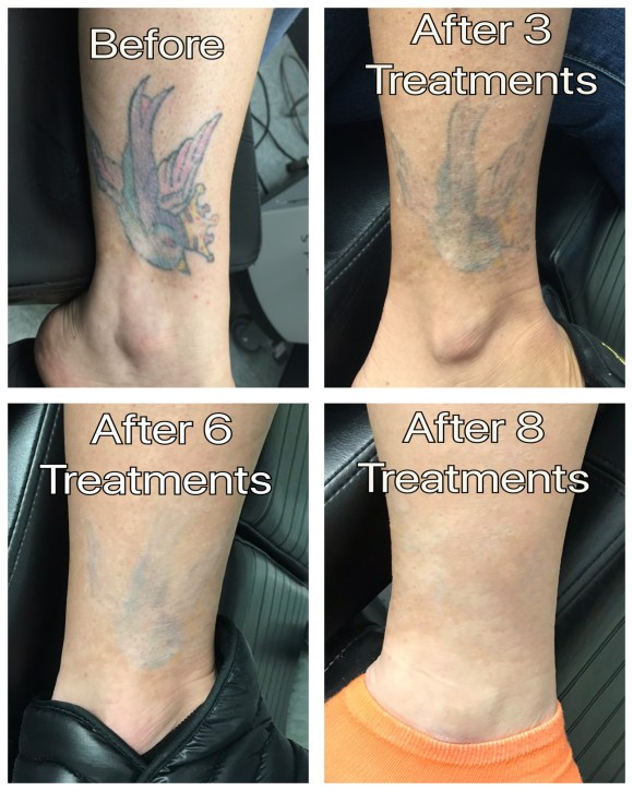 Before & After — Disappearing Ink Laser Tattoo Removal