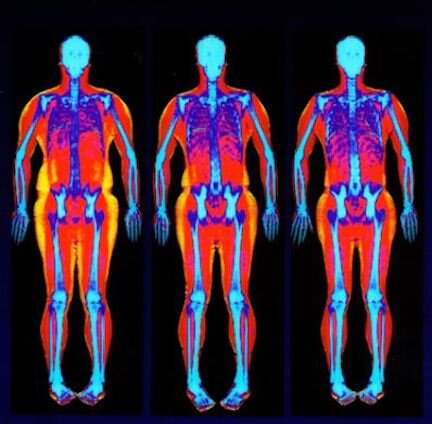 DEXA Scan in Stamford CT — Fitness Lab Testing, and anything else you need to know your body and transform your health and fitness in Milford, A 65-year-old woman ...