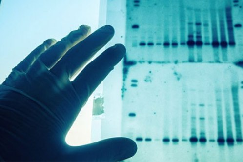 WHICH IS MORE RELIABLE: DNA OR FINGERPRINTING? Fingerprinting Takes an Early Lead