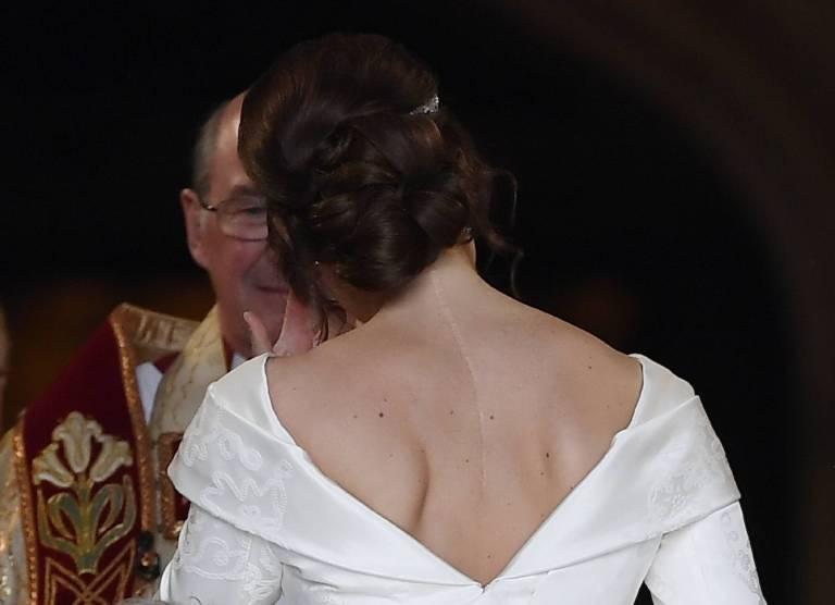 Prinzessin Eugenie ist stolz, dass sie ihre schwere Krankheit überwunden hat. Das Brautkleid versteckt ihre OP-Narbe nicht.  ©imago