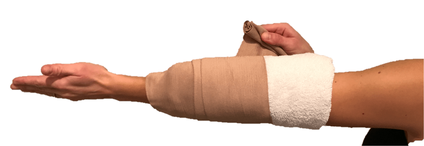 cubital tunnel syndrome raleigh hand