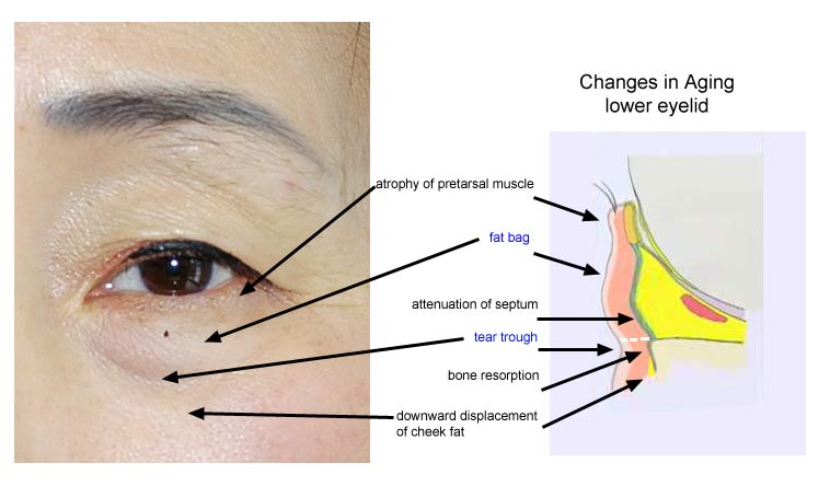 All About Eyebags | The Aesthetic Studio Singapore Clinic ...