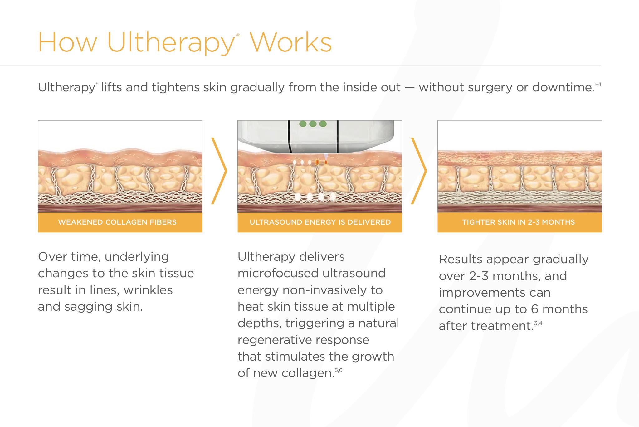 Ultherapy Non-Surgical Lift: Lake Forest Dermatology, Bannockburn (Chicago) IL — Lake Forest Dermatology