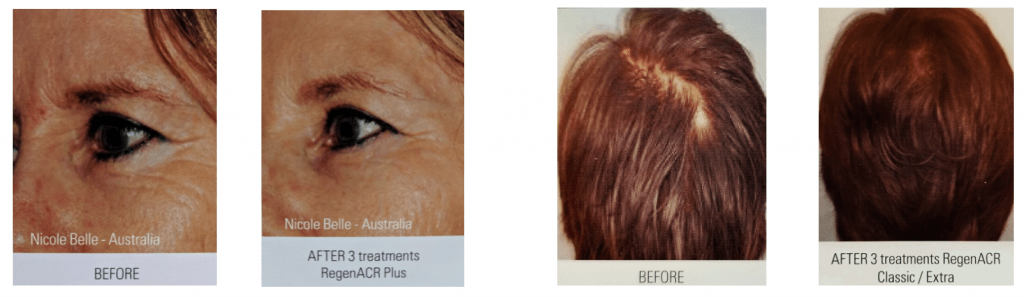 Before and after images of A-PRP treatments for crows feet and hair loss.