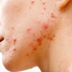 Hormonal Acne Diagram John Deere Lawn Mower Ignition Switch Wiring Treatment Antibiotics Don T Need To Kill Bacteria Clear Up Your Skin