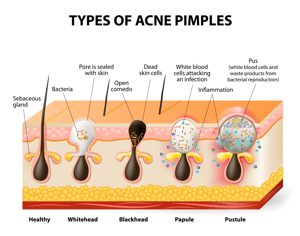 whiteheads blackheads and pustules oh my acne diagram via www shutterstock com  [ 1000 x 789 Pixel ]