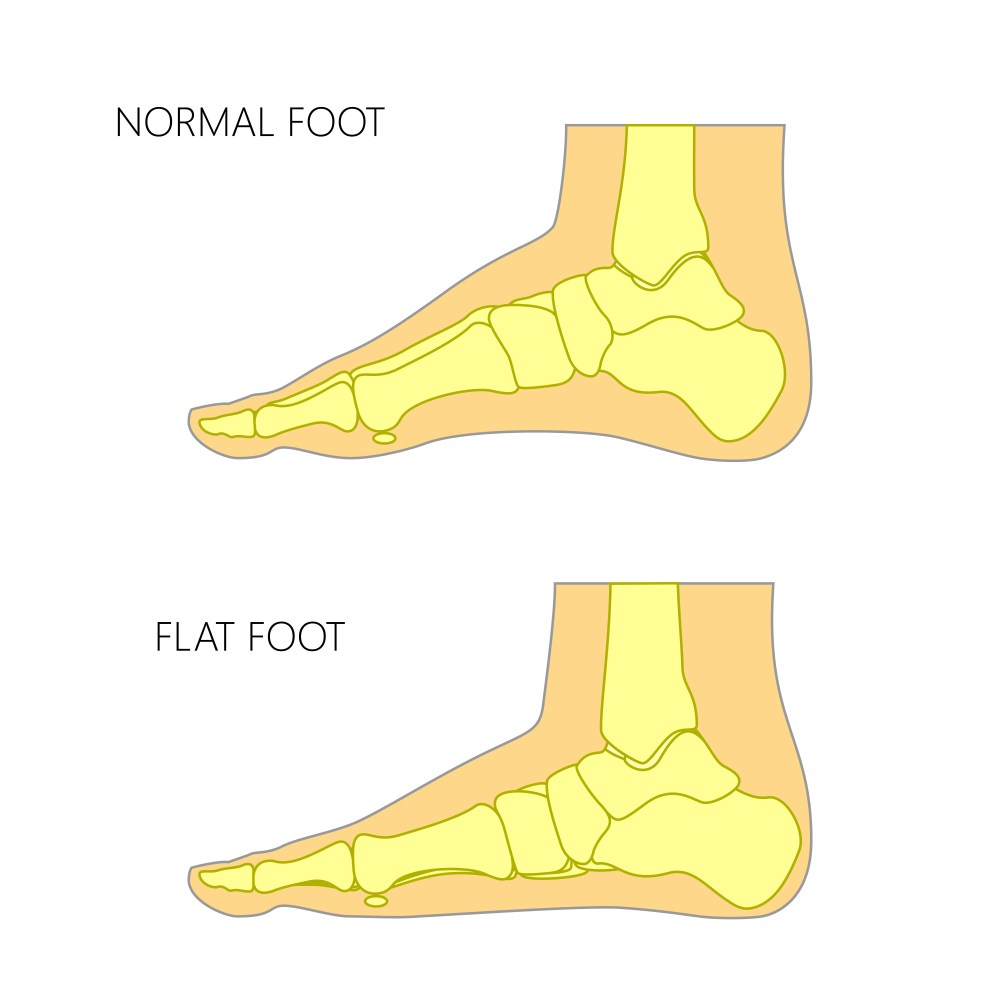 medium resolution of a normal foot compared to a flat foot from www shutterstock com