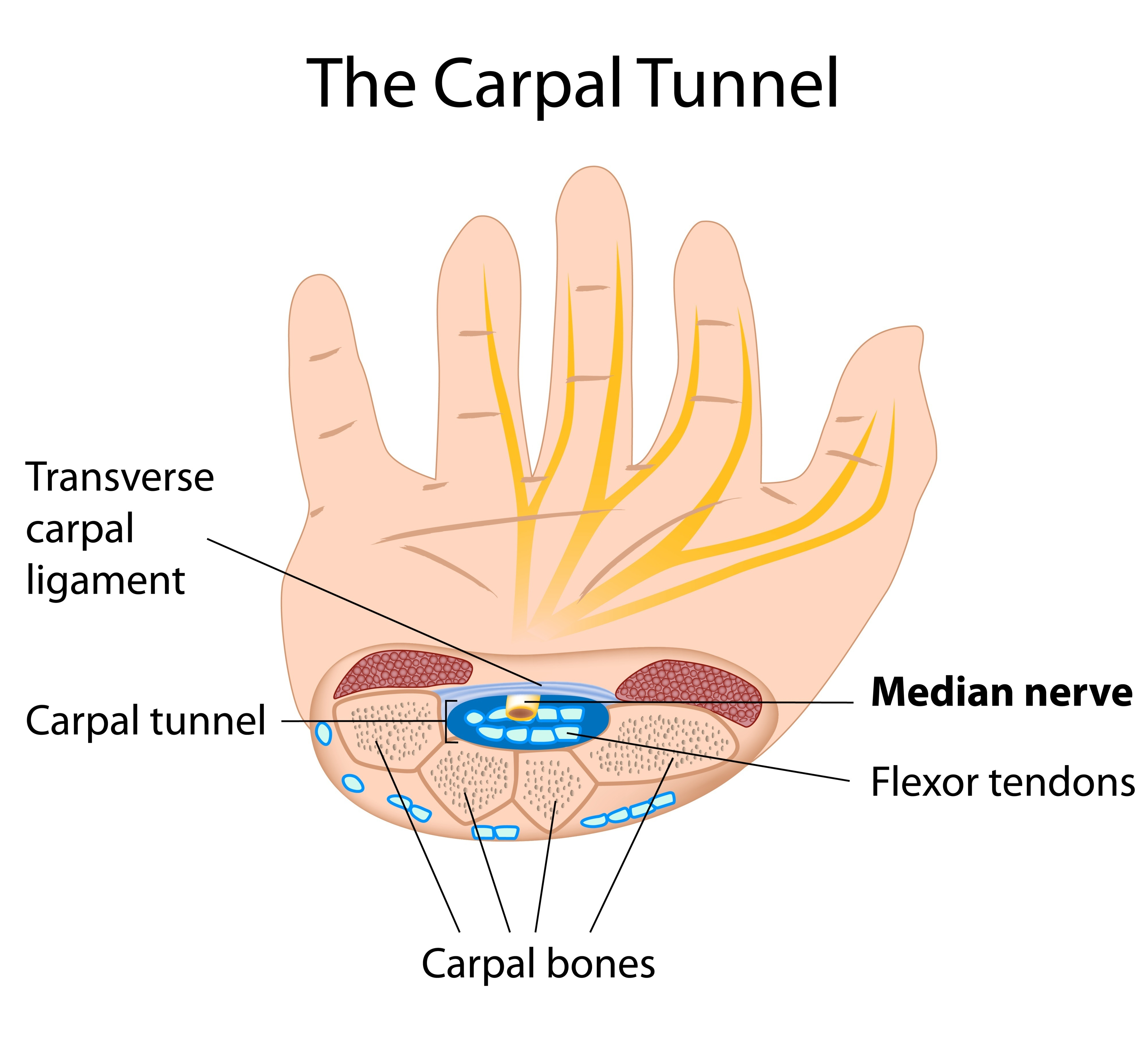 hand nerves diagram 99 dodge neon radio wiring explainer what is carpal tunnel syndrome and happens if i get it of the from www shutterstock com
