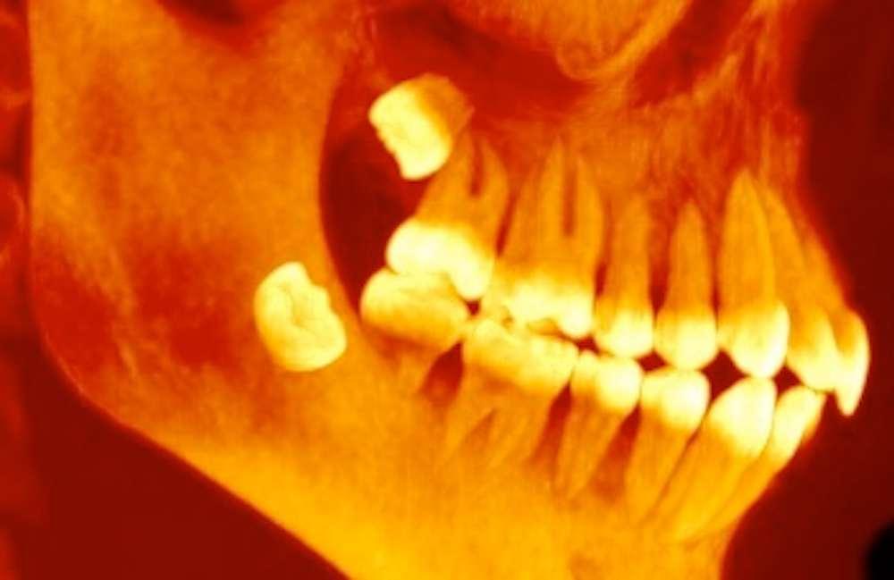 bad molars the origins