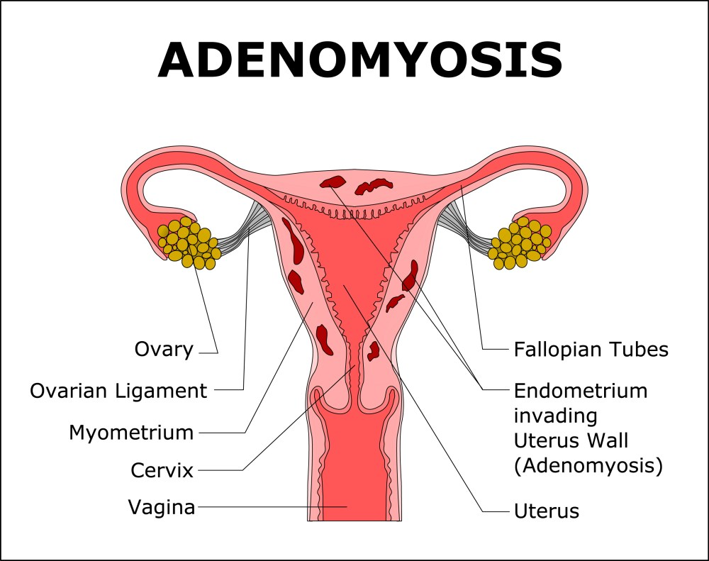 hight resolution of adenomyosis is when tissue that lines the uterus is present inside the muscular wall of the uterus from shutterstock com