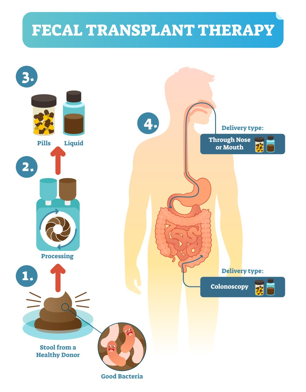 fecal transplant therapy taking healthy stool from a donor and processing and delivering it to a sick recipient vectormine shutterstock com [ 1000 x 1281 Pixel ]