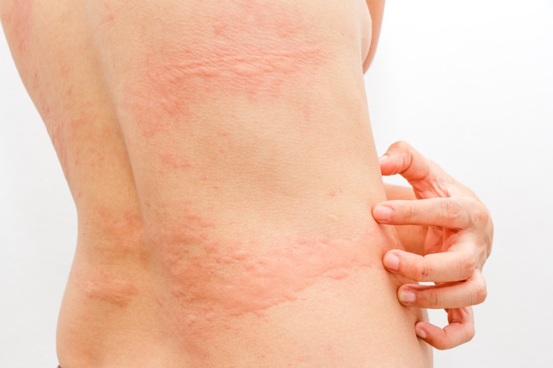 A woman with hives on the trunk of her body.
