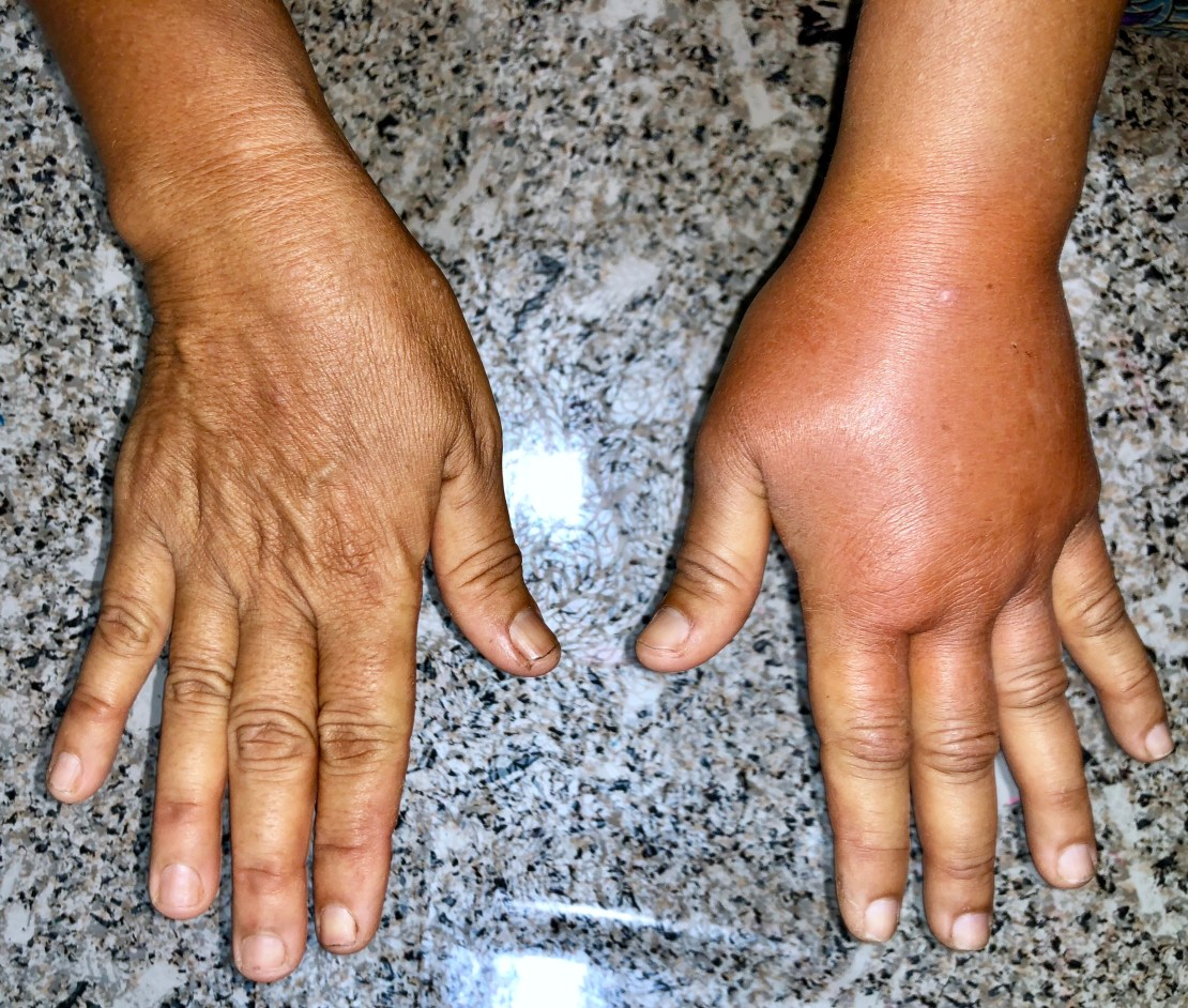 A patient with water retention (oedema) in one of their hands