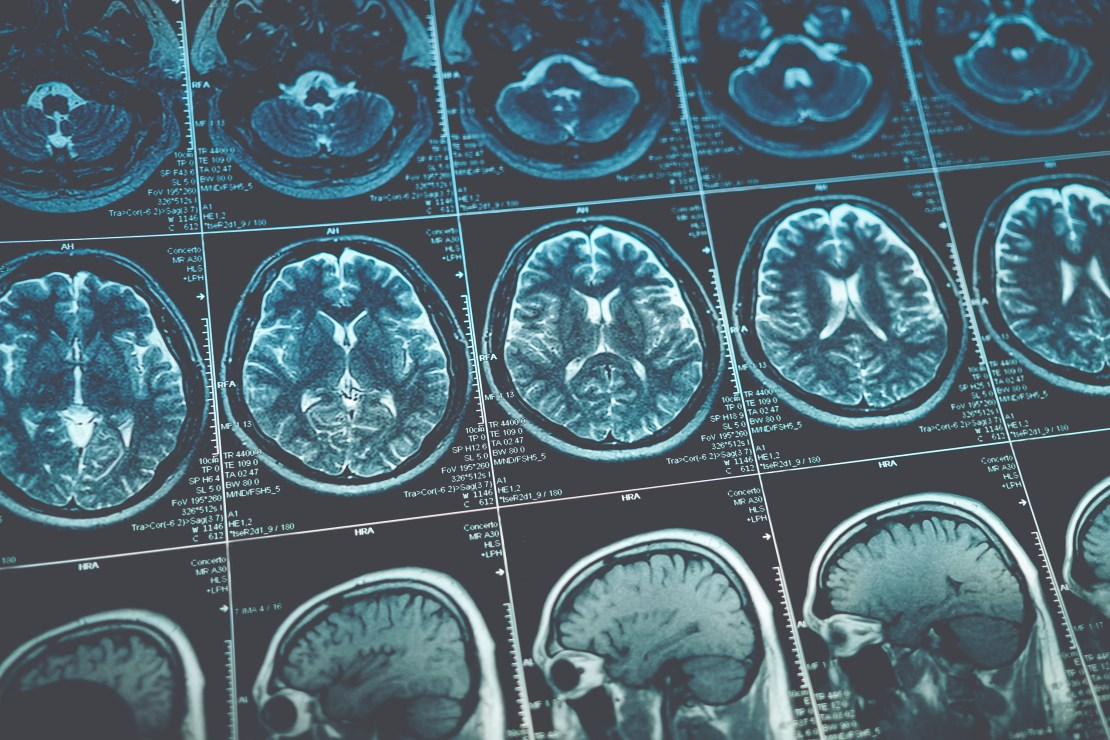 MRI brain scan image.