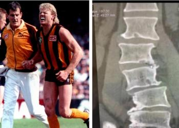 Shocking x-ray reveals gruelling toll on AFL star