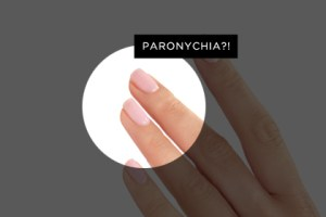Your Grossest Nail Problems -- Solved!