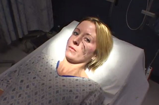 Woman with a scarred face lying on a hospital gurney