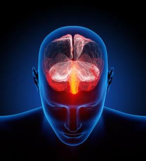 Wissenschaft und Wirtschaft entwickeln gemeinsam Wirkstoffe gegen die Alzheimerkrankheit