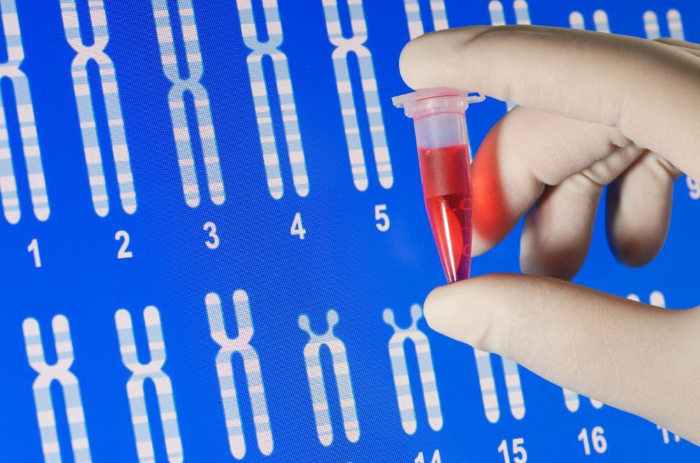 Progeria Genetic Test