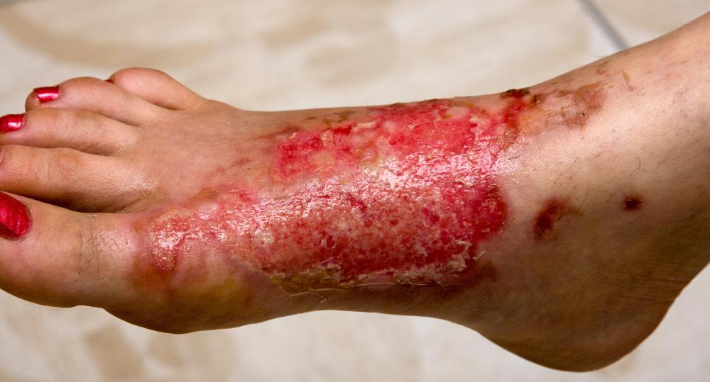 How Do I Treat a Sulfuric Acid Burn with pictures