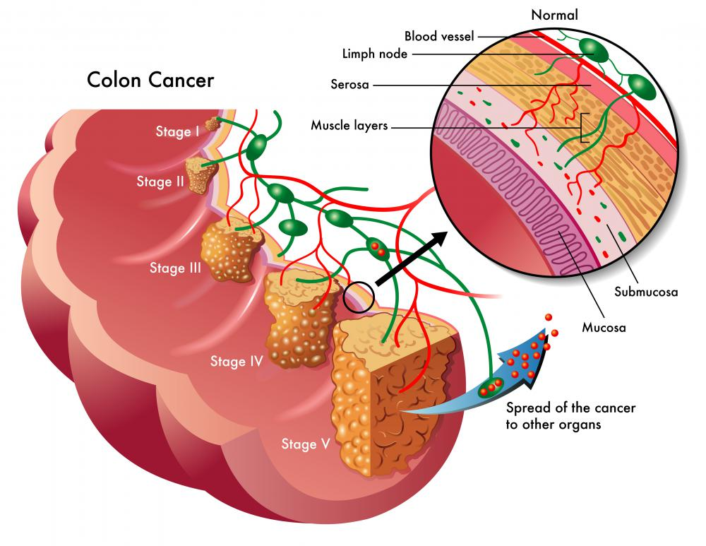 pathophysiology of colon cancer diagram cathedral architecture gothic arches what is the relationship between constipation and cancer?