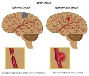 What is a Massive Stroke? (with pictures)