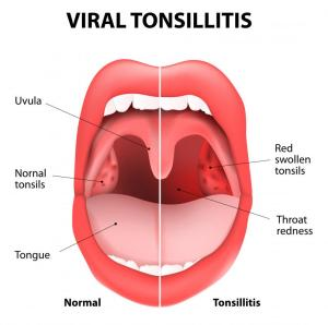 What is Follicular Tonsillitis? (with pictures)